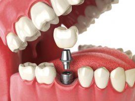 Qual è la differenza tra impianto dentale e innesto osseo dentale?